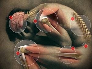 El Síndrome de Sensibilidad Central (SSC) fue uno de los principales temas del Foro 2015 de Dolor y Sistema Nervioso Central.